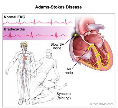 Adams Stokes Disease