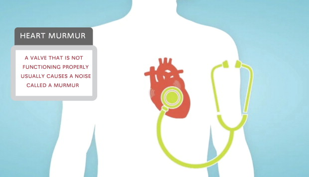 the characteristics of heart murmur atherosclerosis and heart failure Webmd explores the possible causes of heart murmurs elderly people have a heart murmur because of the or enlarge your heart and lead to heart failure.